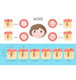 acne types and formation infographics flat vector image