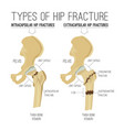 types of hip fracture vector image vector image