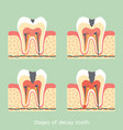 stages of decay tooth anatomy structure vector image vector image