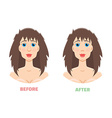 Plastic surgery rhinoplasty before and after vector image vector image