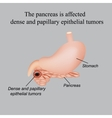 The pancreas is affected dense and papillary vector image vector image