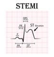 ecg st elevation myocardial infarction stemi vector image vector image