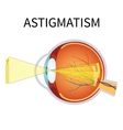 astigmatism vector image vector image