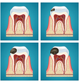 Stages progress caries on human teeth vector image vector image