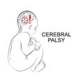 cerebral palsy neurology vector image vector image