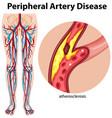 medical peripheral artery disease