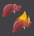 burning anatomical liver realistic human organ of vector image vector image