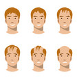 stages of hair loss and hair treatment vector image vector image