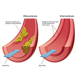Atherosclerosis and Arteriosclerosis vector image