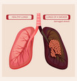 smoker lungs smoke human damage lung cancer vector image vector image