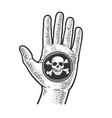 black spot in hand line art sketch vector image