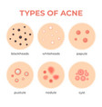 acne types skin infection problem pimples grade vector image vector image