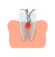 tooth damaged inflammation vector image vector image