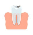 tooth injured with caries vector image vector image