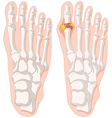 Gout toe in human feet vector image vector image