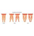 Pediatric orthopedics valgus and varus