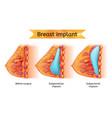 brest implant procedure anatomical cart vector image