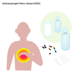 Gastroesophageal Reflux Disease or GERD vector image