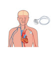 heart pacemaker in work human heart artificial vector image