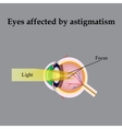 Impaired vision with astigmatism As astigmatism vector image