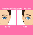 cosmetic procedures botox vector image vector image