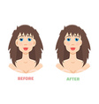 Plastic surgery otoplasty vector image vector image