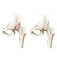 Hip arthritis vector image