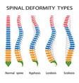 Spinal deformity types vector image