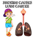Boy smoking cigarette and lung cancer vector image vector image