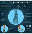 Foot Bone Infographic Infocharts Health And vector image