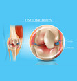 osteoarthritis realistic medical scheme vector image