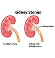 Diagram of kidney stones vector image vector image