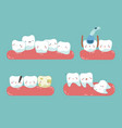 check up decayed tooth wisdom tooth of dental se vector image vector image