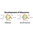 Development of Glaucoma in human eyes vector image