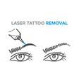 eyebrow removal procedure laser tattoo removal vector image vector image