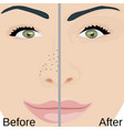 blackheads remove on nose treatment vector image