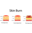 skin burn three degrees of burns type of injury vector image