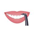 lazer correction high smile line or gummy smile vector image vector image