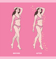 woman body hair removal vector image