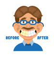 man show teeth before and after clean vector image