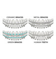 braces set different types human jaw vector image vector image