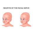 facial nerve neuritis in a child vector image vector image