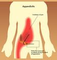appendix pain points vector image vector image
