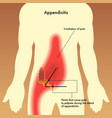 of appendix pain points vector image