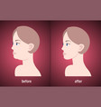 woman face before and after double chin fat vector image