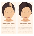 Hair loss in women vector image vector image