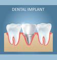 dental implant medical poster design vector image vector image