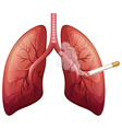 Lung cancer with smoke vector image