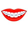 colorful cartoon healthy smile in braces vector image