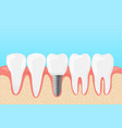 human teeth and dental vector image vector image